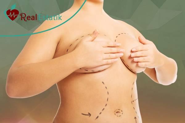تكلفة عملية تصغير الثدي في تركيا