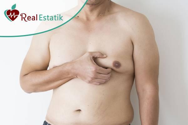 تكلفة عملية ازالة التثدي عند الرجال في تركيا