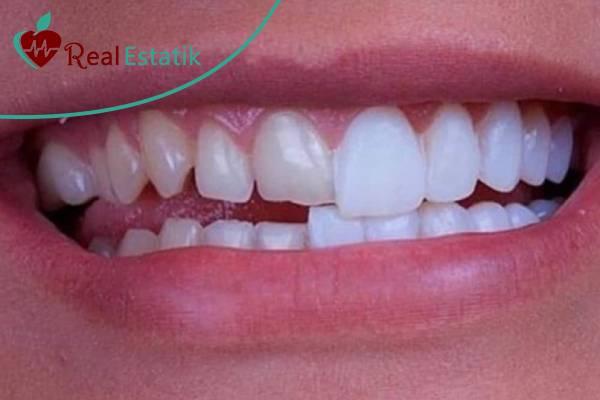 تركيب اسنان emax في تركيا