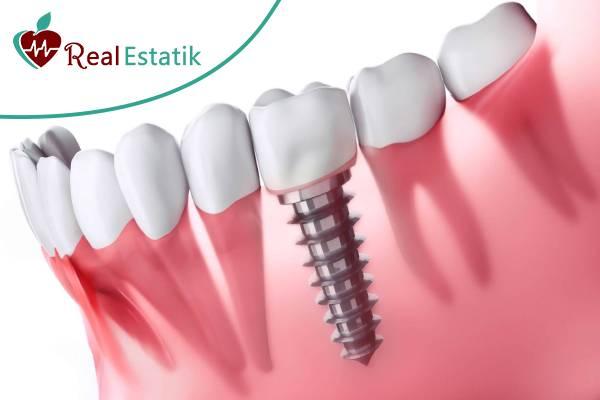 زراعة الاسنان في تركيا
