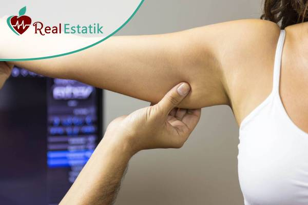 عملية شفط الدهون الذراع بالفيزر