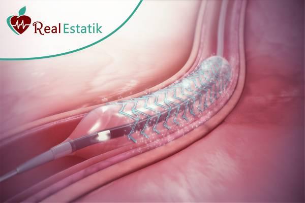 أفضل مستشفى لأمراض القلب في تركيا