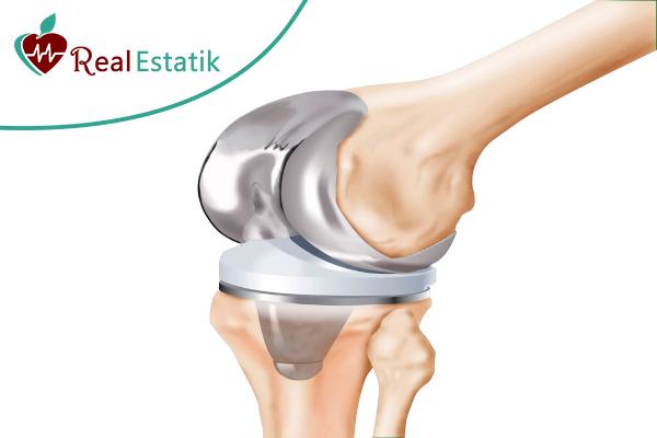 عملية استبدال مفصل الركبة في تركيا